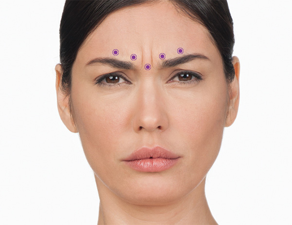 10 units of botox in forehead