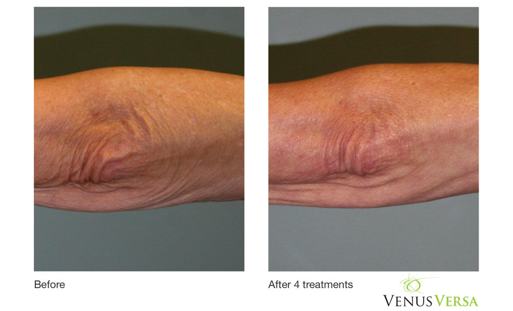 Elbow Wrinkles Reduction