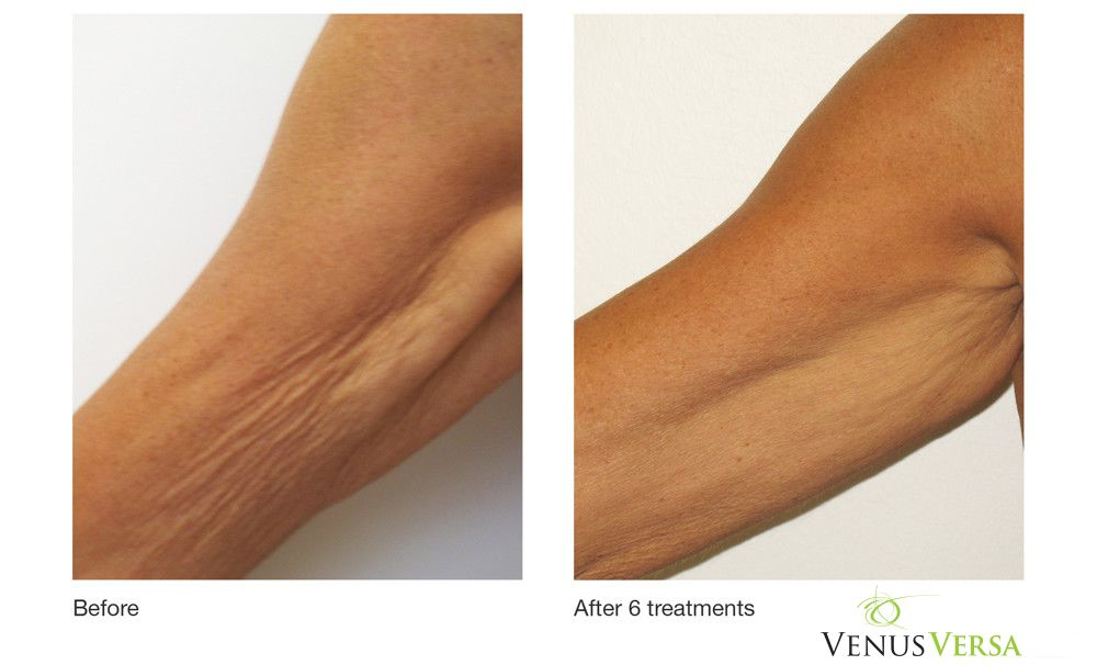 Arm Wrinkle Reduction